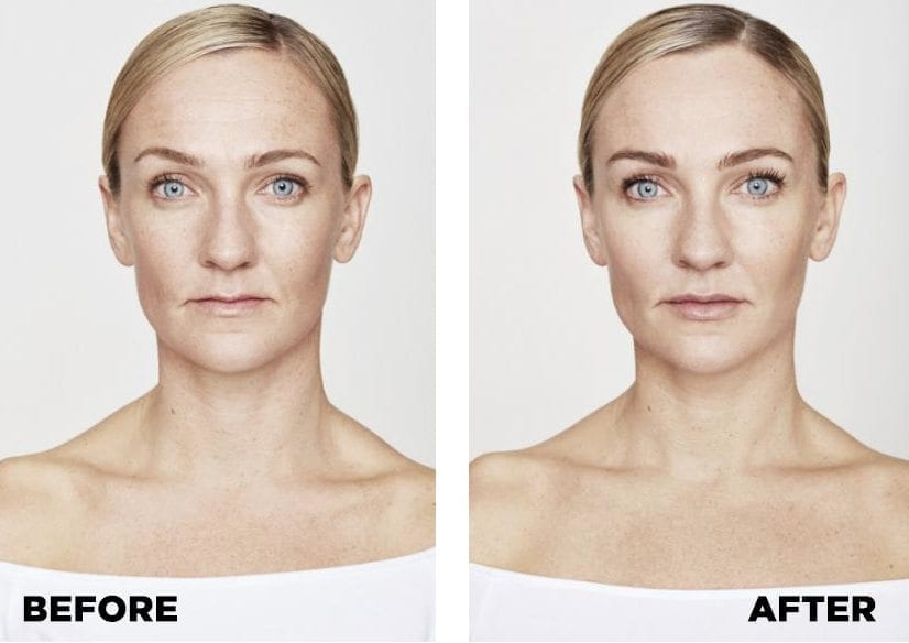 Dermal Fillers Before and After. Sofia, 39. Areas treated: chin,