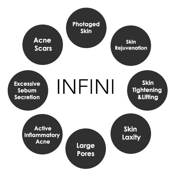 INFINI Treats