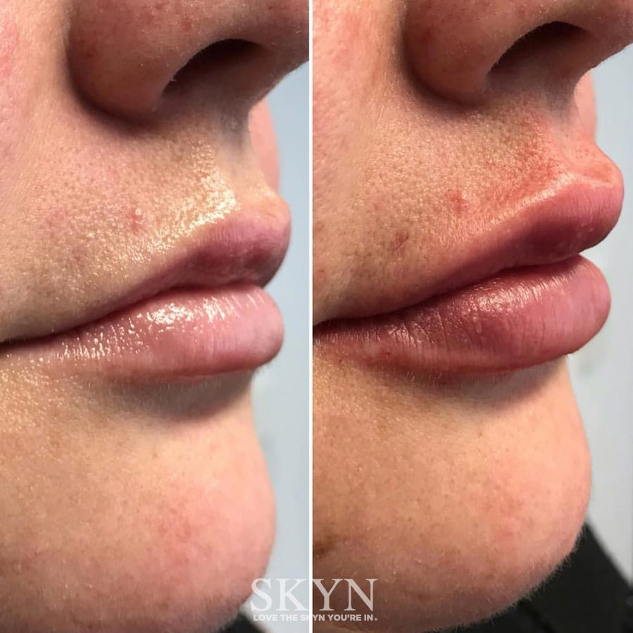 Before and After Lip Fillers Perth