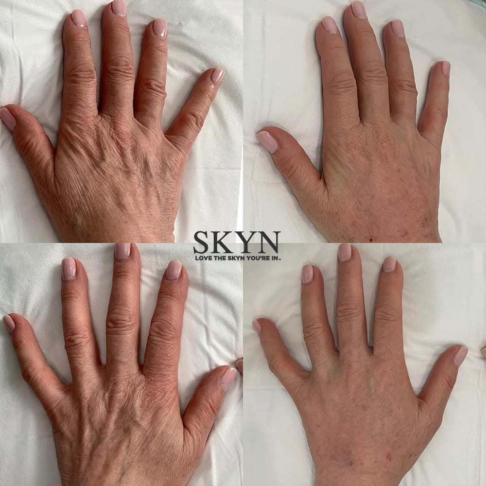 radiesse hand rejuvenation before and after