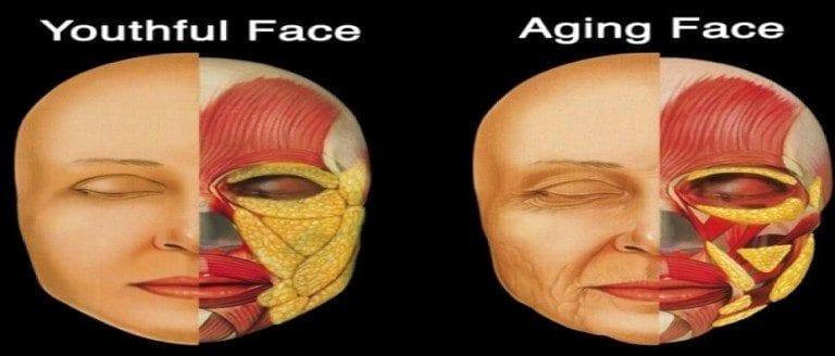 Aging-photo-6