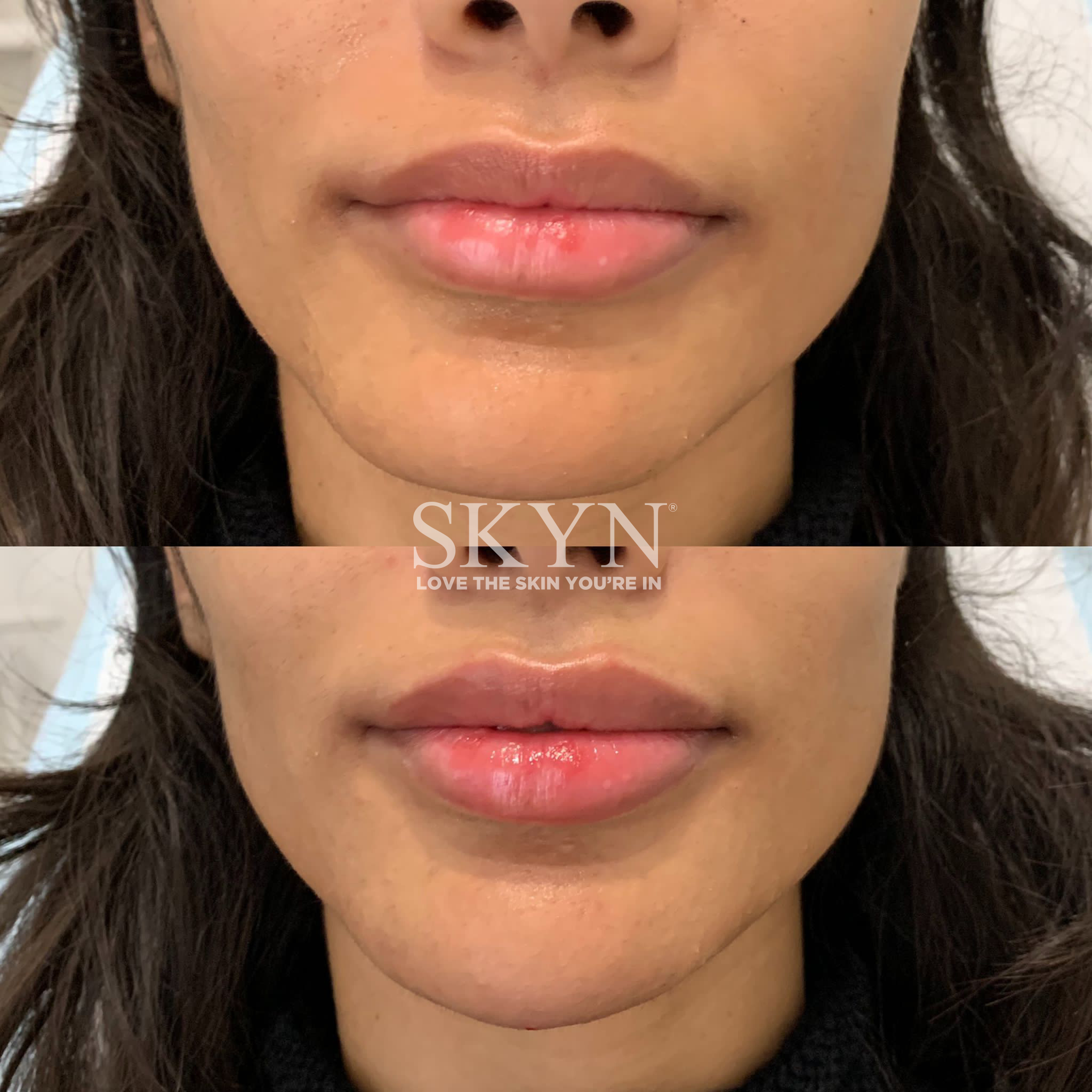 Before & After Lip Fillers
