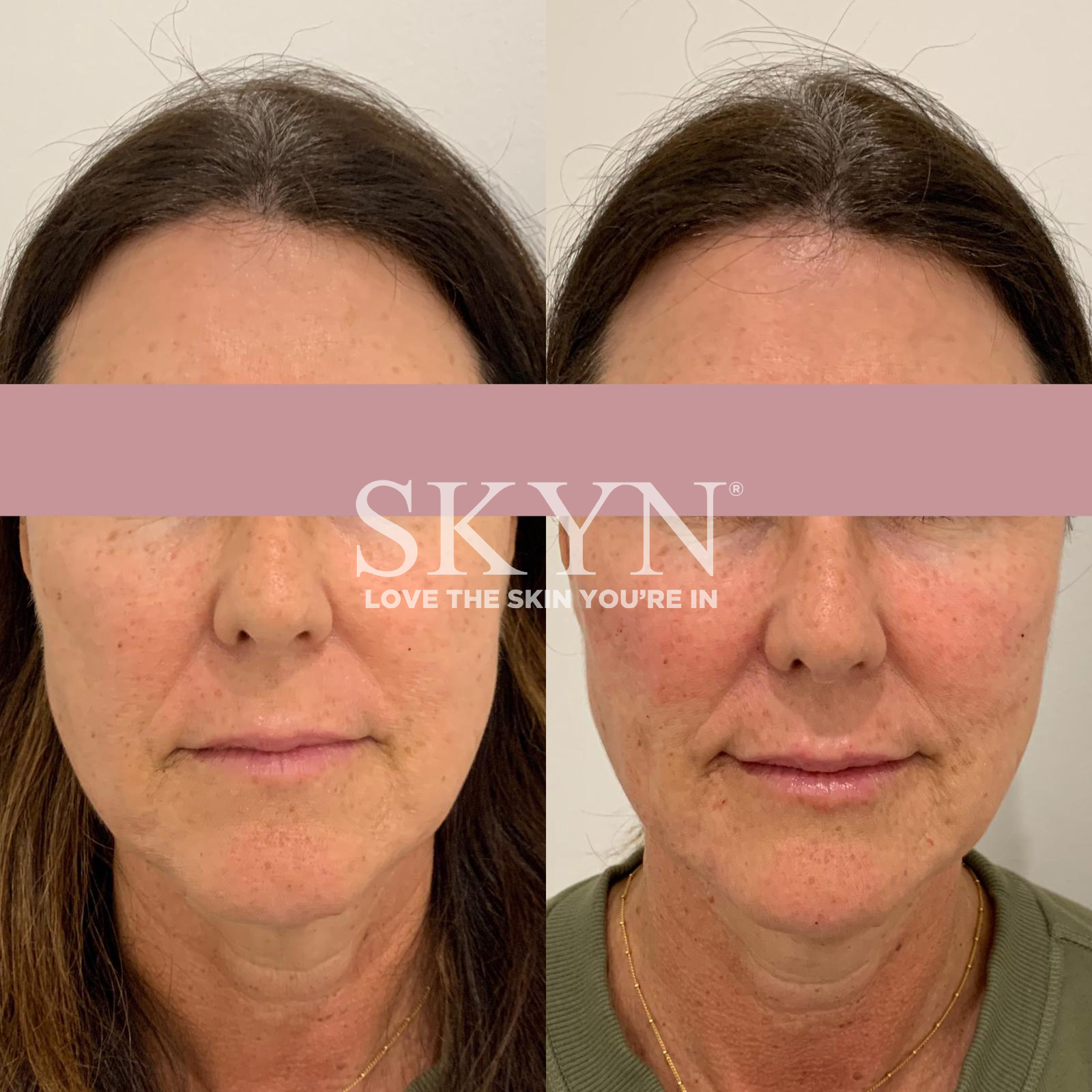 Before & After Liquid Facelift