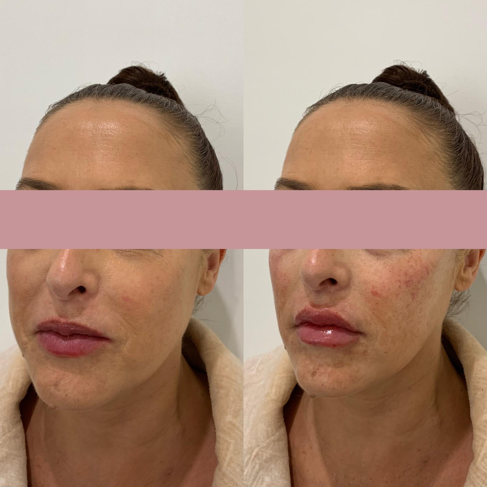 Before & After Chin Fillers